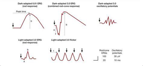 pattern erg iscev electrogenesis of the electroretinogram radiology key