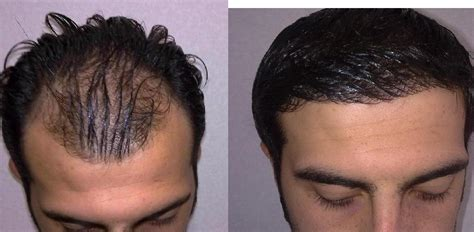 hair transplant before and after hair cut after fue los angeles fue hair transplant