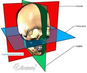 25 best ideas about sagittal plane on general