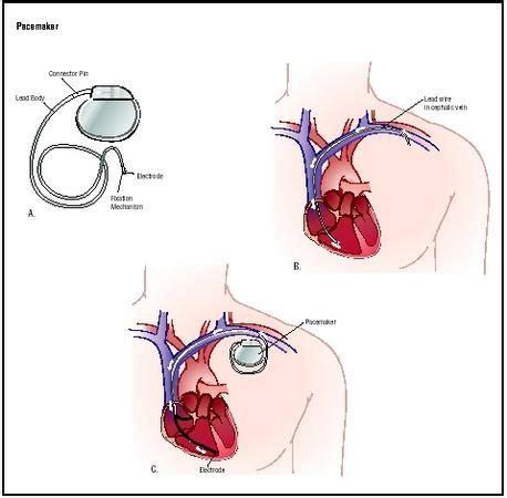 Baterai Alat Pacu Jantung v learn from v sekilas mengenai alat pacu jantung atau pacemaker