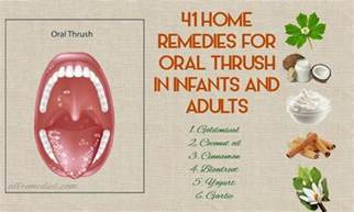 41 home remedies for thrush in infants and adults
