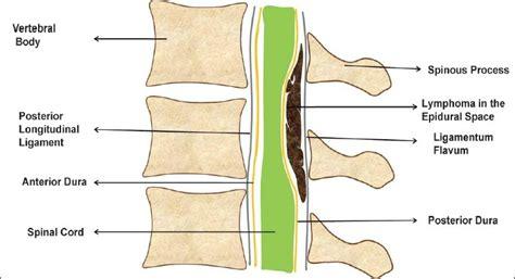 spinal vs epidural for c section primary spinal epidural lymphomas cugati g singh m pande