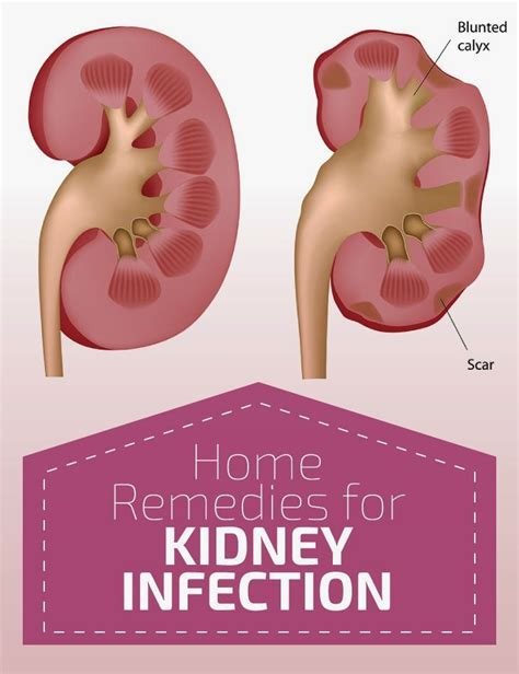 kidney infection kidney infection bing images