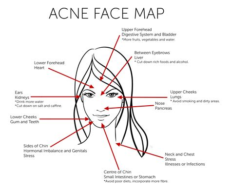 acne on chin cystic acne on chin the health care