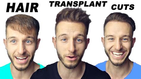 how important right hairstyle transplant my 3 favorite hairstyles after my hair transplant youtube