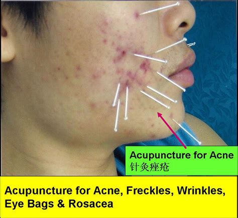 Detox Breakouts From Accupuncture by Tcm News Tcm Treatment For Acne Freckles