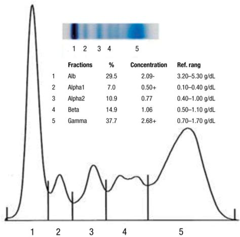 protein electrophoresis the result of serum protein electrophoresis showing ele