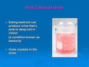 beets urine color urology surg 451clinical session ppt
