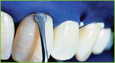 teeth whitening  edmonton beverly heights dental