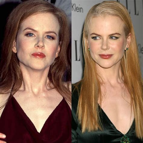 celebrity plastic surgery 24 before after pictures 2015 24 celebs before and after plastic surgery trendify