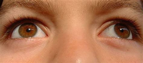 light brown yellow quot hazel eyes quot are often a manifestation of central
