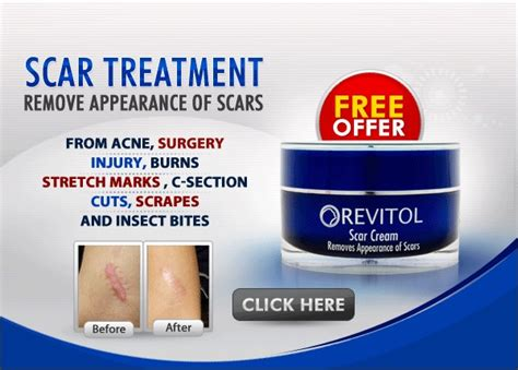 scar cream for c section c section scar cream revitol scar cream home remedies for