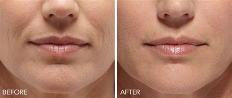 rejuvapen for neck before and after dermapen derma glow treatments in houston