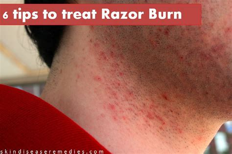 how to get rid of razor burn instantly skin disease remedies
