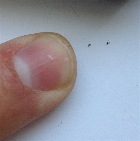 Black Dots Comeing Out Of Skin In Detox Bath by Black Specks On Scalp All About Parasites Black Specks