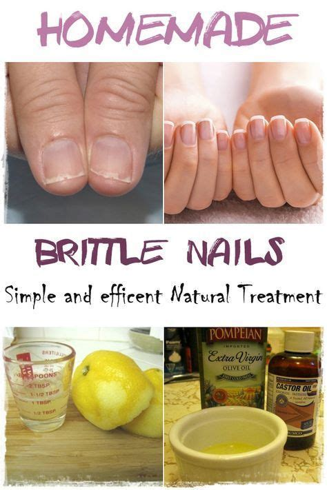 7 Remedies For Fragile Fingernails by 17 Best Images About Nail Growth On Biotin