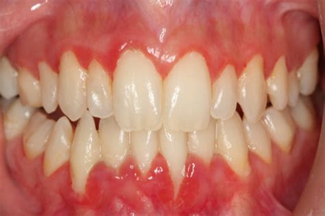 gingivostomatitis home remedies 28 images gum and
