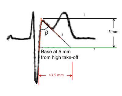 dr. smith's ecg blog: saddleback st elevation. is it stemi