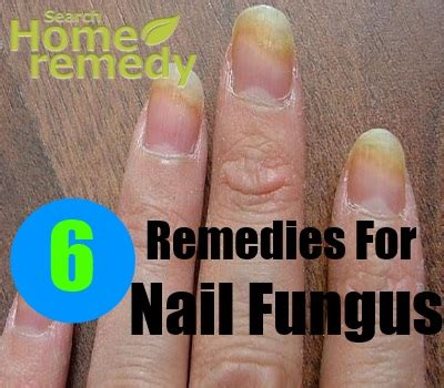 6 home remedies for nail fungus treatments cure
