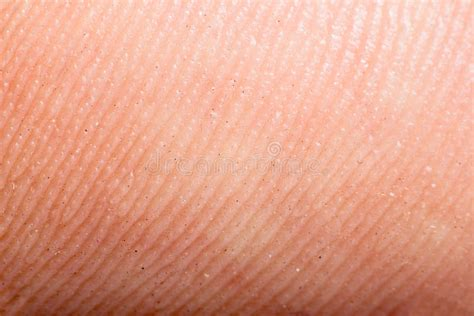 macro texture burns on human skin stock photo 415678729 up human skin macro epidermis stock image image 36429611