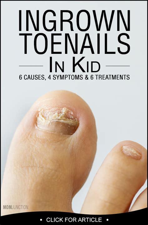 5 remedies for ingrown toenail ingrown toenail ingrown toenail in kids 6 causes and 6 treatments