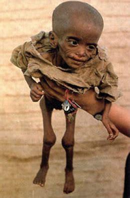 imagenes niños de africa fotos de los ni 241 o desnutridos de africa taringa