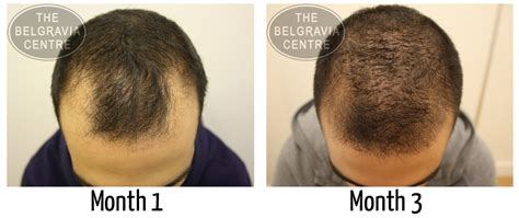 natural hair styles for receding hair line receding hairline prevent and regrow a receding hairline