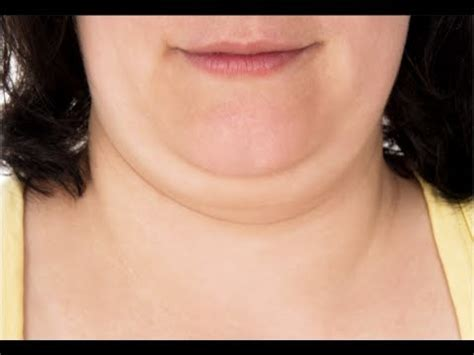women fat necks how to get rid of double chin fast youtube
