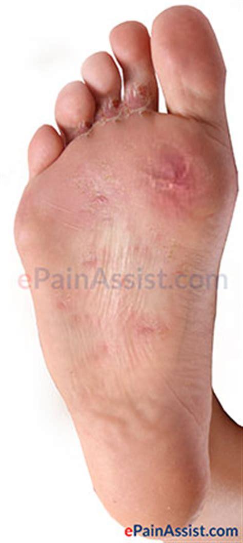 athletes foot shoe treatment athlete s foot or tinea pedis symptoms causes treatment