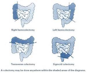 colectomy i had a sigmoid colectomy in march 2012 which