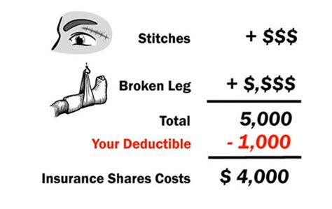 How do deductibles work in health insurance : FOREX Trading
