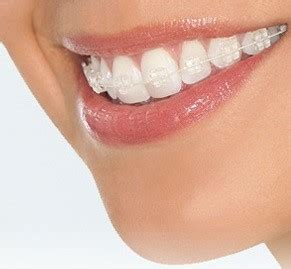 Harga Clear Braces how much do ceramic braces cost the dental guide