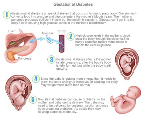 gestational diabetes c section gestational diabetes symptoms an alarm for you a threat