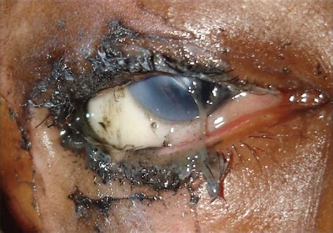 eye injury firecracker eye injuries during deepavali festival a series
