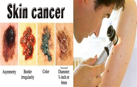4 facts you should know about skin cancer skin cancer