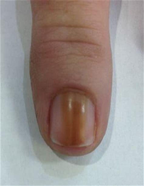 nail bed melanoma bride s nail blemish turns out to be rare melanoma