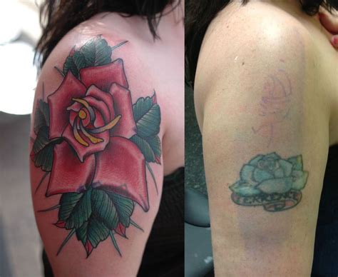 northeast laser tattoo removal cover up northeast laser removal and