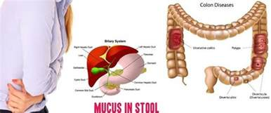 mucus in stool images symptoms treatment diagnosis