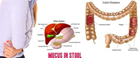 Blood And Mucus In Stool Diagnosis by Mucus In Stool Images Symptoms Treatment Diagnosis
