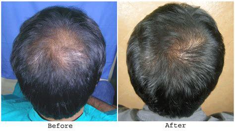 hair crown area hair loss hair transplant and hair restoration advice