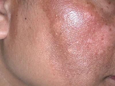 淨膚雷射的肝斑治療 妳準備好了嗎 劉達儒dr lius皮膚專科 痞客邦 pixnet
