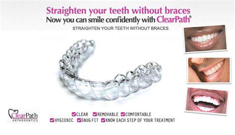 Untuk Sarung Gigi zoeyzauyah braces jernih dan tak sakit