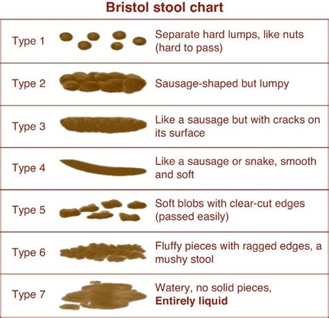 Bristol Stool Chart For by Naturally Loriel How I Healed Fissure