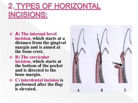 horizontal incision c section principles of flap surgery copy