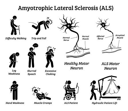 Amyotrophic Lateral Sclerosis Symptoms