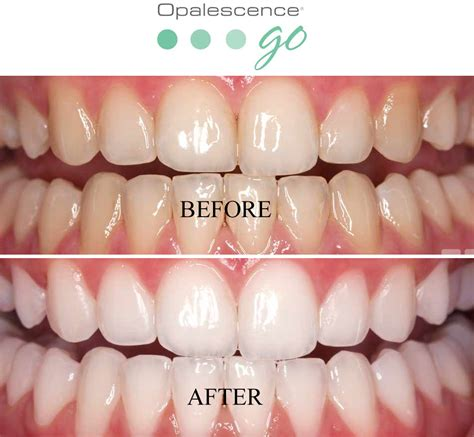 Opalescence Teeth Whitening Before and After