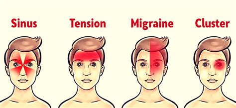 Types of Migraine Headache