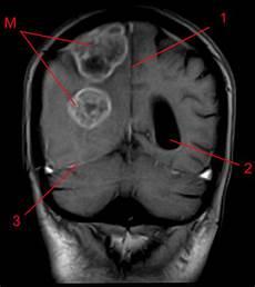 Tumeur Poumon Metastase Cerveau Images Kireetam Images