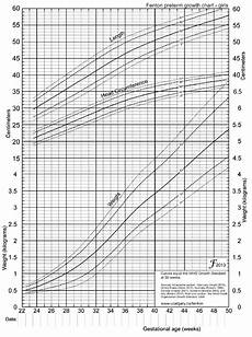 Aap Infant Growth Chart Small For Gestational Age Sga Infant Pediatrics