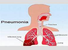 aspiration pneumonia in the elderly